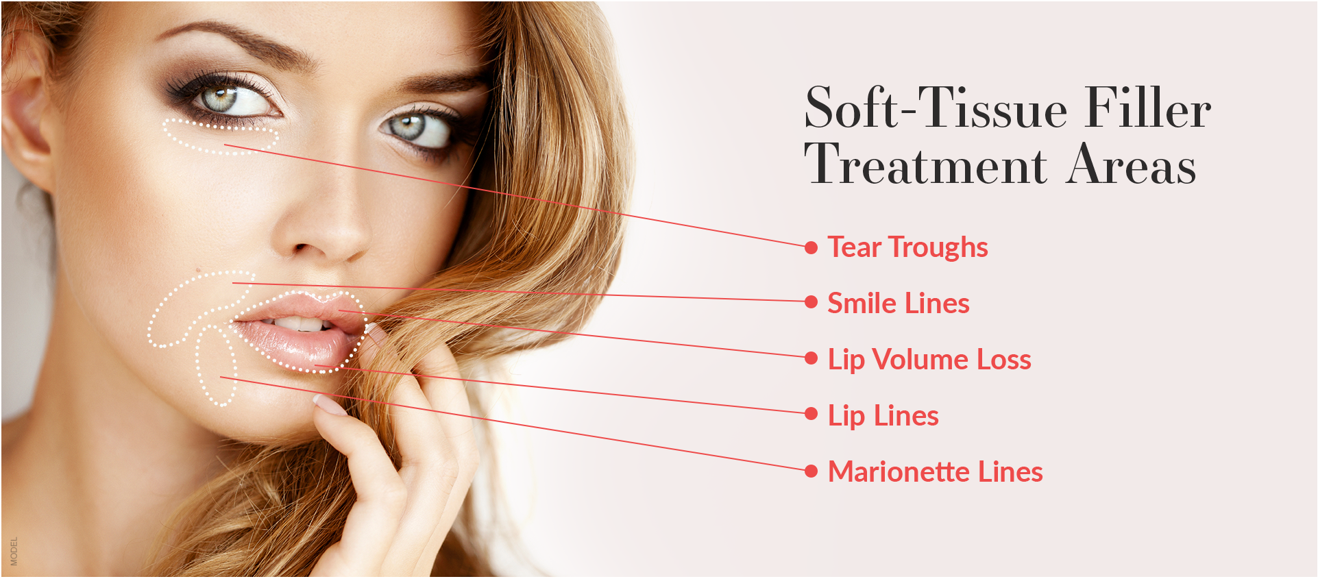 soft-tissue filler treatment areas diagram