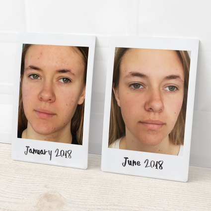 Before and after photos showing young woman's improved complexion