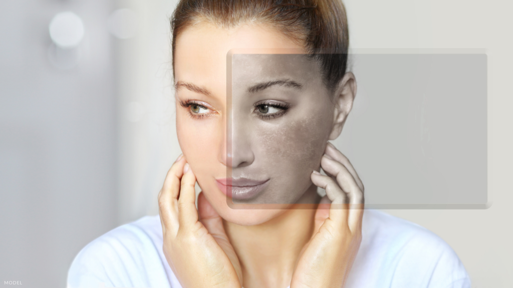 Woman after Microneedling for Melasma in London, ON.